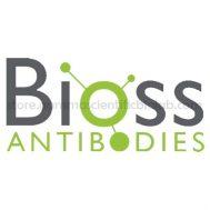 RAGE Polyclonal Antibody