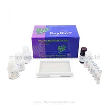 Custom Human Lipocalin-1 Elisa Kit 96 Well