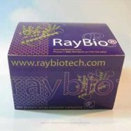DPP4 Inhibitor Screening Kit; 100 assays